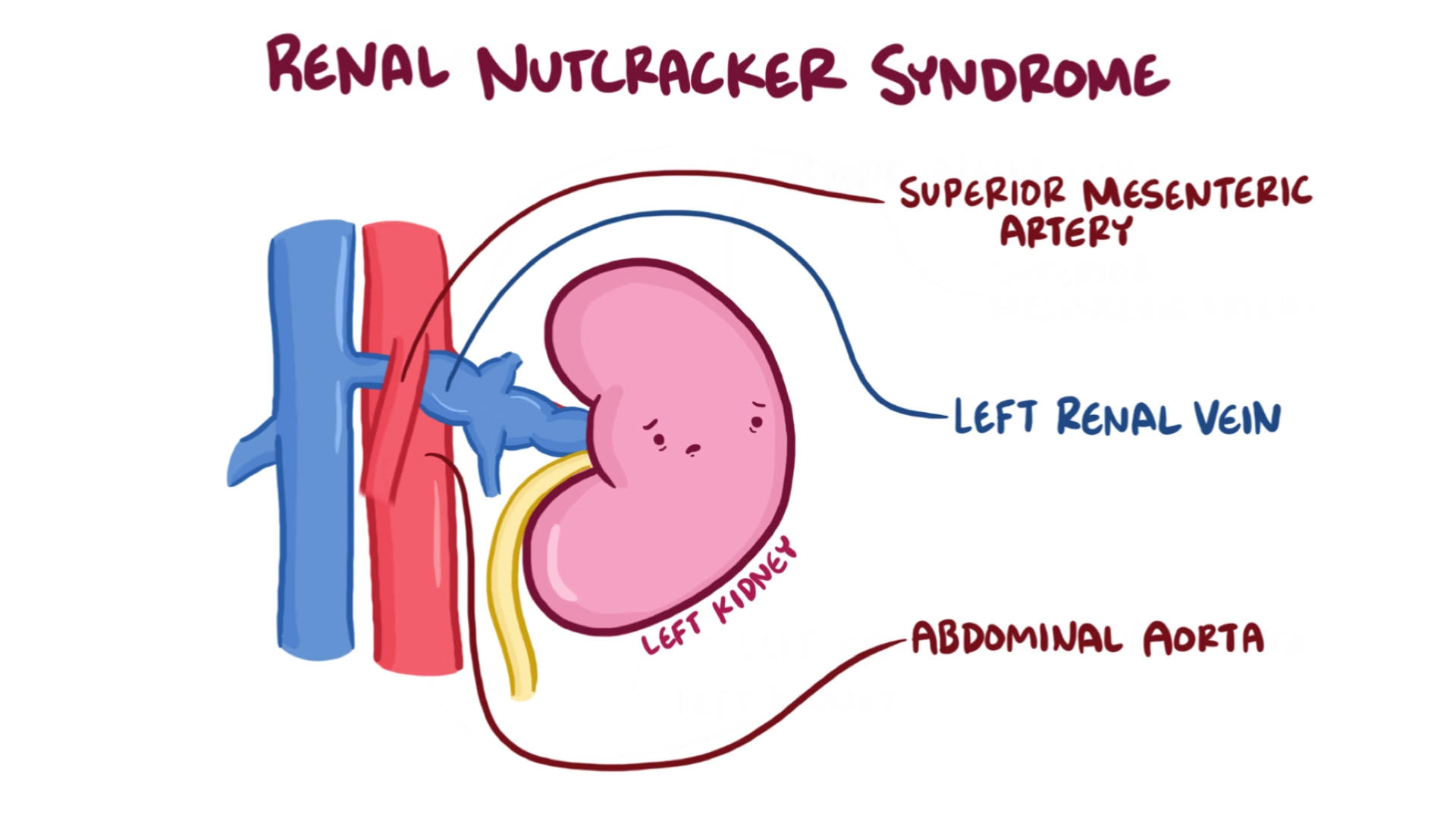 renal nutcracker syndrome