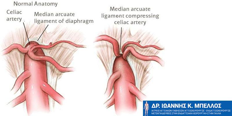ραντεβού μετά από χειρουργική επέμβαση παράκαμψης του στομάχου Πόσο σύντομα τα ραντεβού μετά τη διάλυση